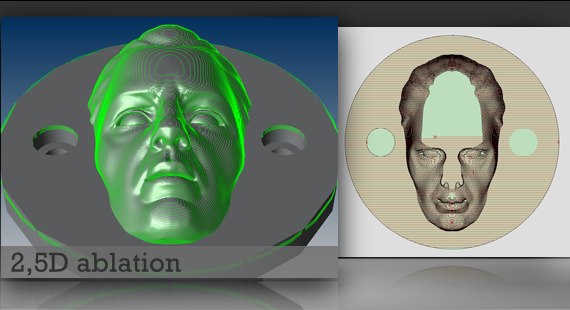 3D ablation